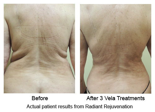 VelaShape III - Seattle - Photo Gallery -        Radiant Rejuvenation
