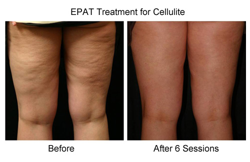 Cellulite Treatment - Radiant Rejuvenation