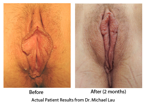 Labioplasty with Clitoral Hood Reduction
