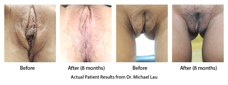 Labiaplasty Majora and Minora