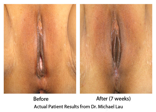 Loose Vagina Vaginal Rejuvenation